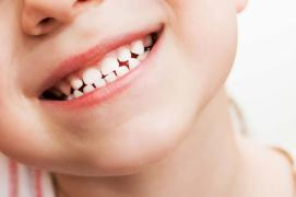 How to take proper care of baby teeth