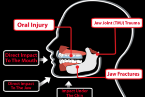 Mouth guards: Protect your Child's teeth!