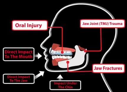 Impact to the Jaw