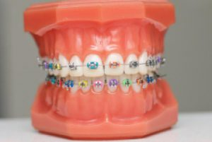 Benefits of Ortho and Invisalign